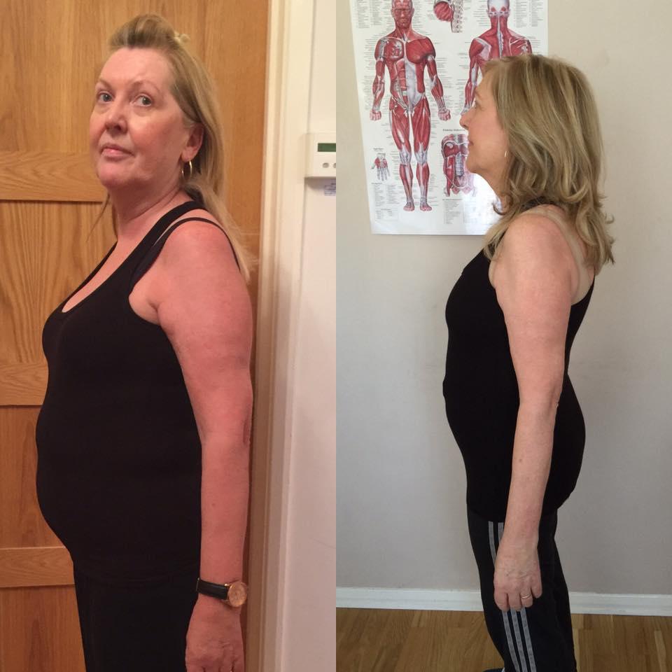 Anne 10 weeks